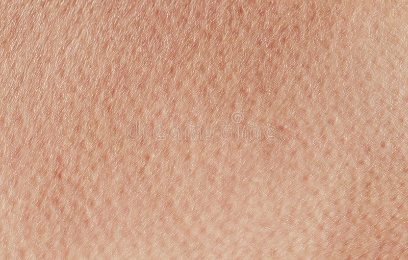 il fondo strutturato da anomia umana sana rosa del primo piano della pelle, coperta di pori e le grinze strisciano fotografia stock libera da diritti