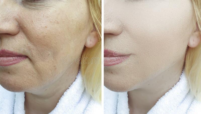 Il fronte della donna corruga la rigenerazione prima e dopo il trattamento fotografia stock libera da diritti