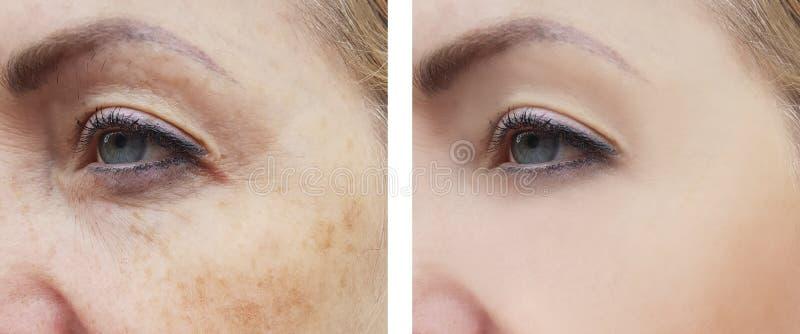 Il fronte della donna corruga la salute del trattamento di correzione di differenza della pigmentazione prima e dopo le procedure fotografie stock
