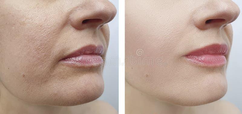 Il fronte della donna corruga la tensione di sollevamento cascante di ringiovanimento prima e dopo la correzione immagini stock