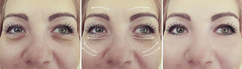 Il fronte della donna corruga il risultato dell'estetista di terapia prima e dopo la freccia del collage di correzione fotografia stock