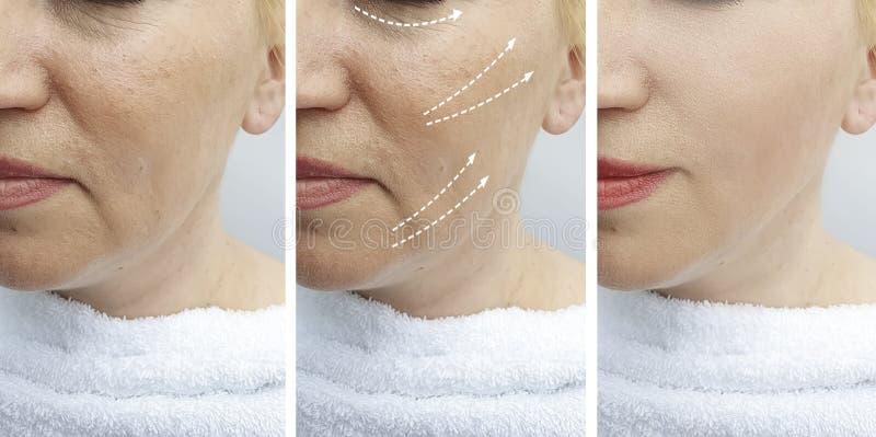 Il fronte della donna si corruga prima dopo il collage di sollevamento di correzione di rimozione di risultato di trattamento del immagine stock libera da diritti