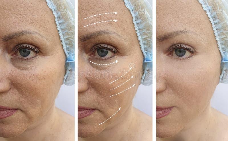Il fronte della donna si corruga prima dopo il collage di sollevamento di correzione di rimozione di risultato di trattamento di  fotografie stock libere da diritti