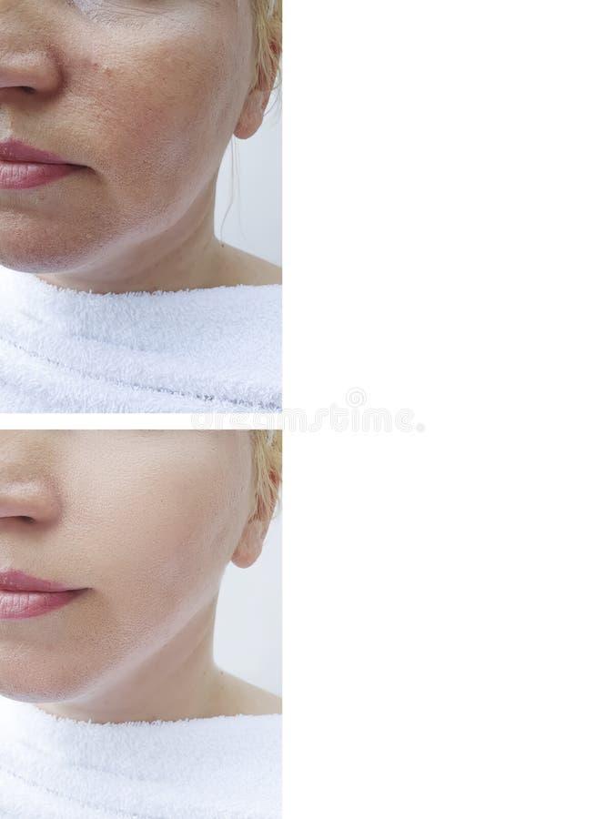 Il fronte della pelle della donna corruga la tensione di plastica di effetto del collage che solleva prima dopo i trattamenti ant fotografie stock libere da diritti