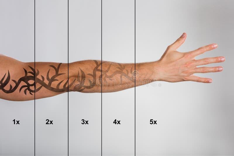 Il laser tatua la rimozione sulla mano del ` s dell'uomo fotografie stock libere da diritti