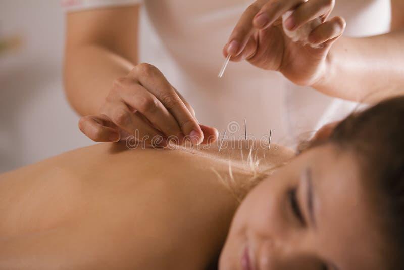 Il medico attacca gli aghi nel corpo del ` s della ragazza sull'agopuntura - alto vicino fotografia stock libera da diritti