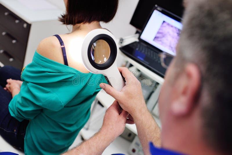 Il medico esamina le voglie del paziente tramite una lente d'ingrandimento fotografia stock libera da diritti