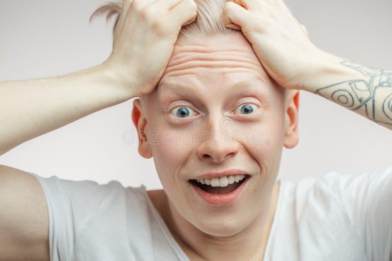Il modello maschio sorpreso estatico emozionale dell'albino con gli occhi ostacolati ed apre la bocca immagini stock libere da diritti