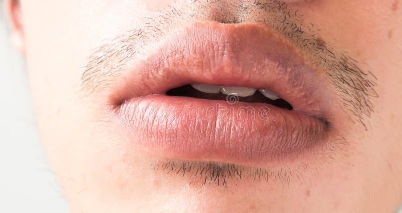 Il primo piano delle labbra equipaggia la sanità di problema, herpes simplex fotografie stock