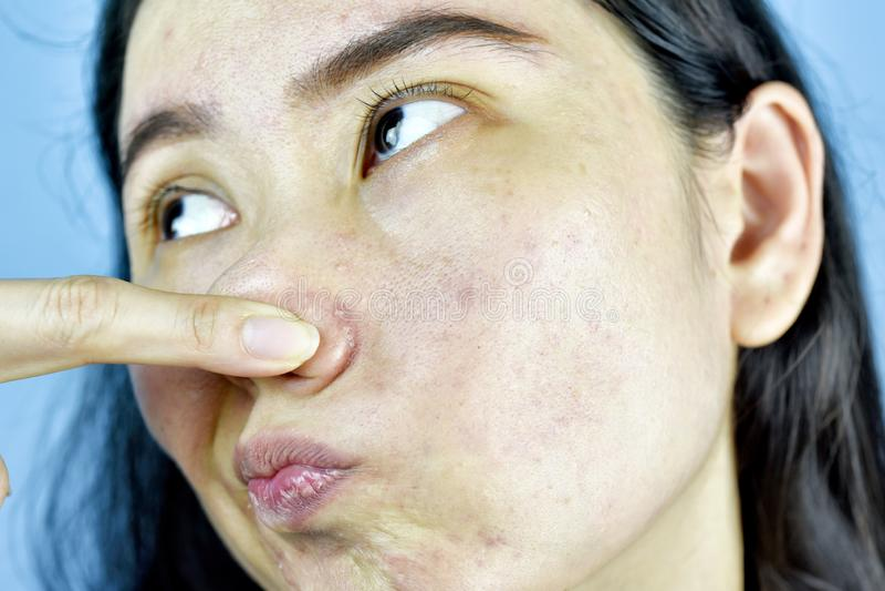Il problema di pelle dell'acne, donna asiatica si infastidisce ed alesato circa i brufoli ormonali immagini stock libere da diritti