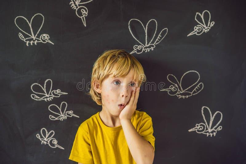 Il ragazzo è morso dalle zanzare su un fondo scuro Sulla lavagna con le zanzare dipinte gesso fotografie stock