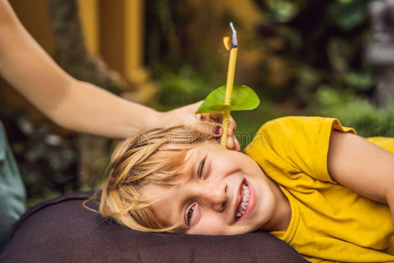 Il ragazzo ha una procedura con una candela per l'orecchio, le orecchie dei bambini, buon udito, cera per le orecchie immagini stock