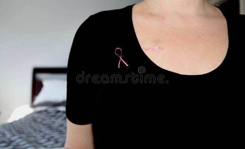 Il ritratto di giovane malato di cancro in un foulard esegue un esame del seno di auto fotografie stock libere da diritti