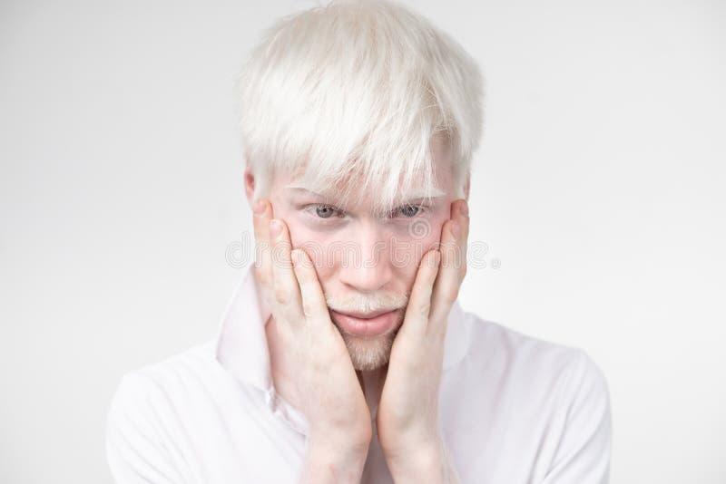 Il ritratto di un uomo dell'albino in studio ha vestito la maglietta isolata su un fondo bianco deviazioni anormali Aspetto insol fotografie stock libere da diritti