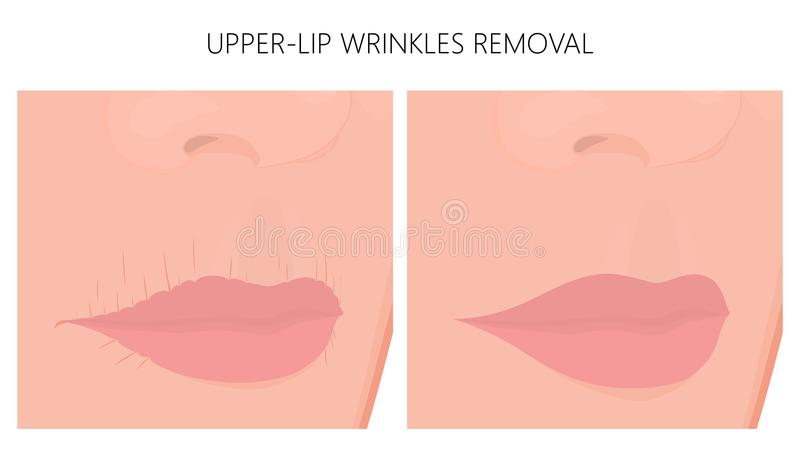 Il surgery_Upper-lip di plastica corruga la rimozione illustrazione vettoriale