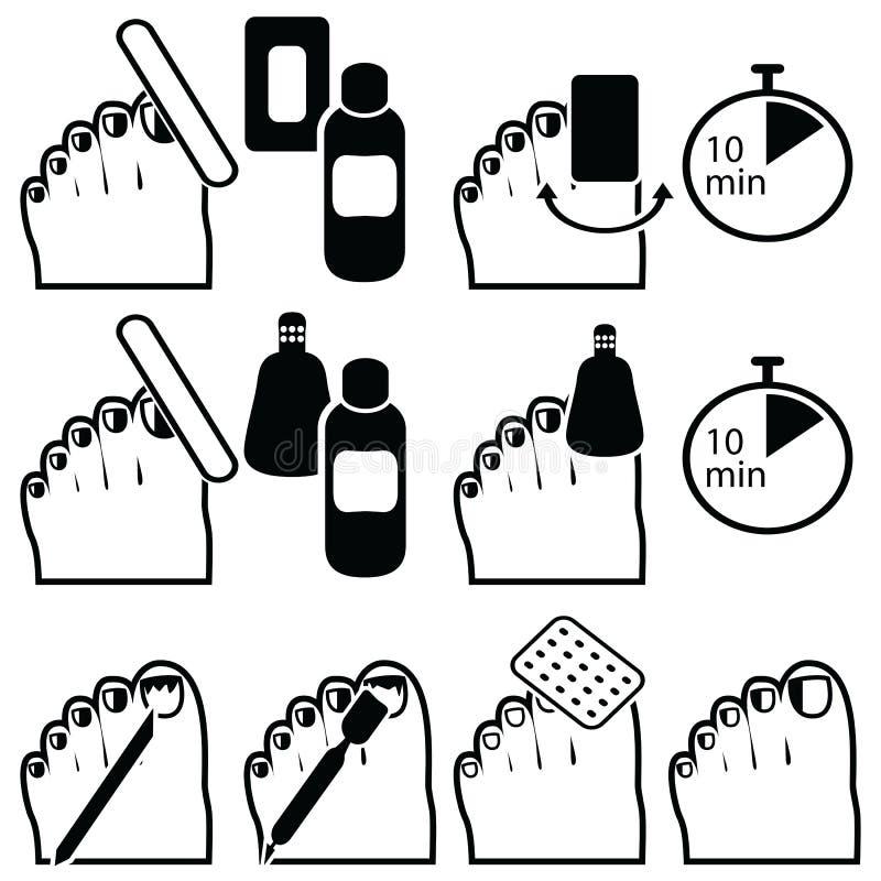 Il titanio ibrido femminile del gel e di pedicure inchioda la preparazione per rimozione della vernice con differenti metodi come illustrazione di stock