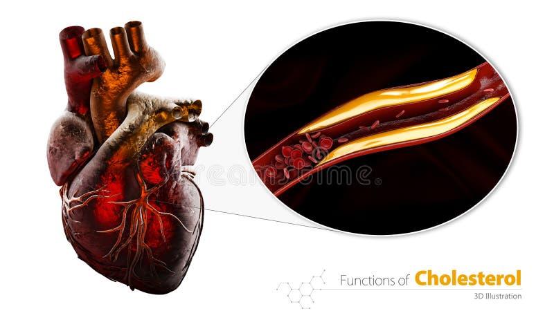 Il vaso sanguigno bloccato, arteria con accumulazione del colesterolo, l'illustrazione 3d ha isolato il bianco illustrazione vettoriale