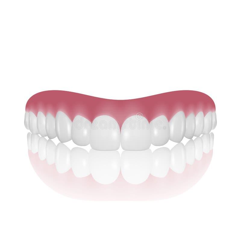 Il vettore 3d realistico rende il primo piano della protesi dentaria isolato su fondo bianco Progettazione di ortodonzia e di odo illustrazione di stock