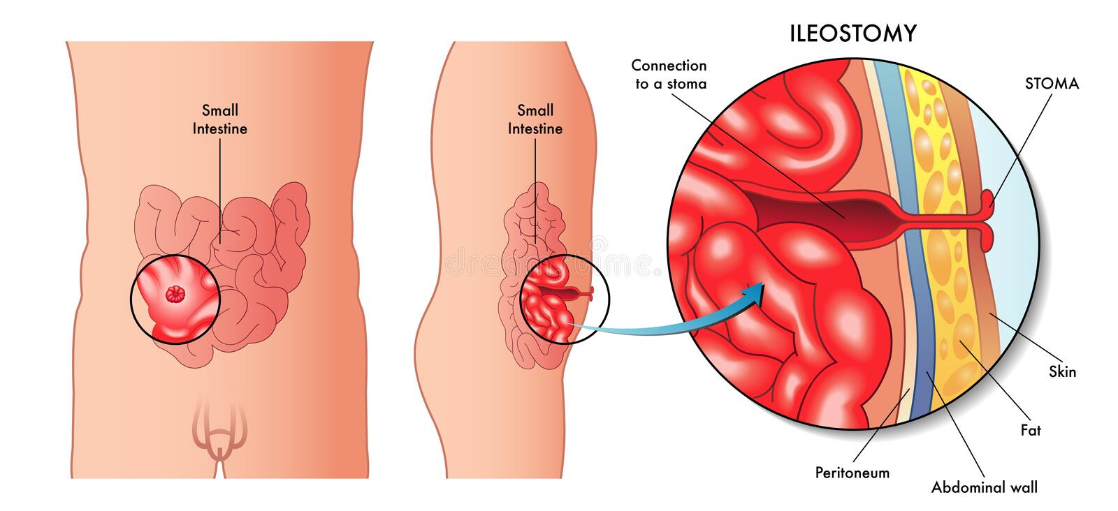 Ileostomy vektor illustrationer
