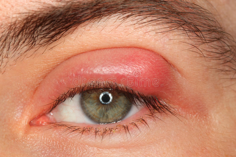 Illness person eye with sty and pus