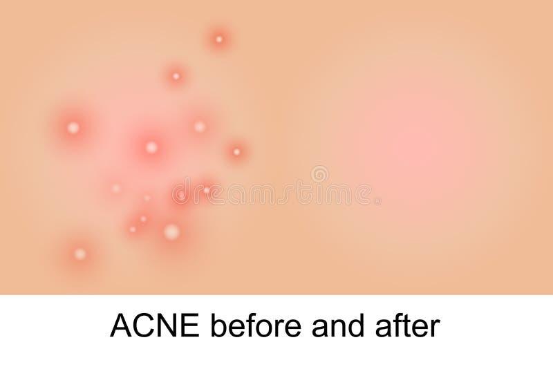 Illustratie van acne royalty-vrije illustratie