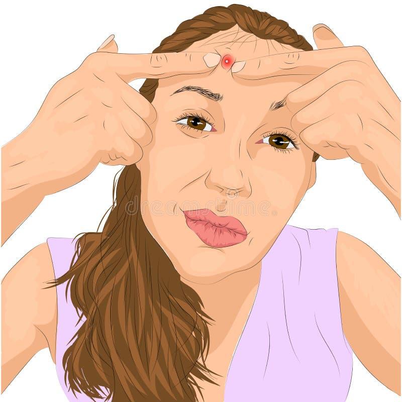 Illustratie van acneprobleem aangaande vrouwengezicht vector illustratie