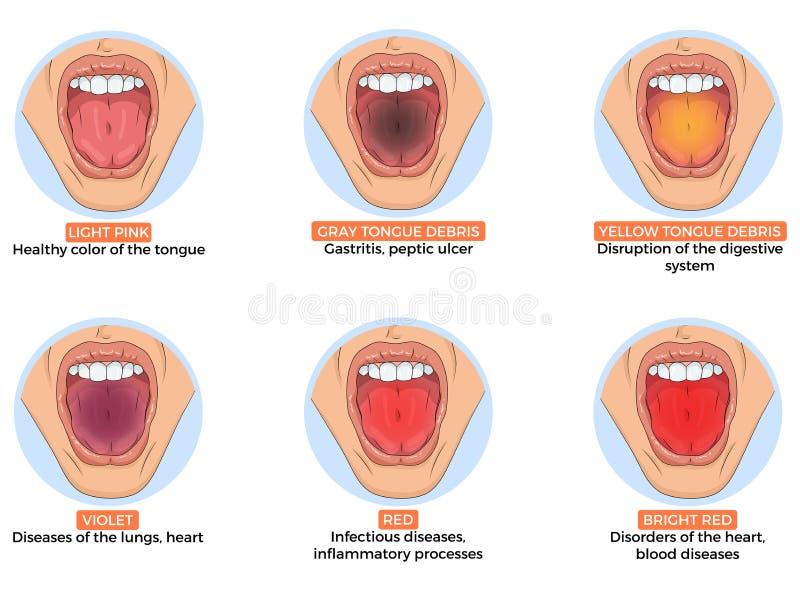 Illustratie van diagnose van verschillende ziekten royalty-vrije illustratie