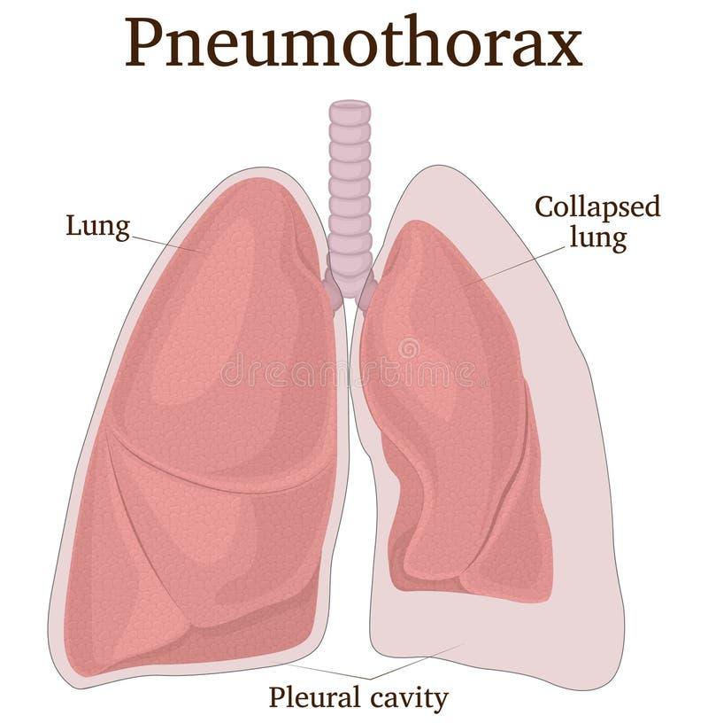 Illustratie van Pneumothorax royalty-vrije illustratie