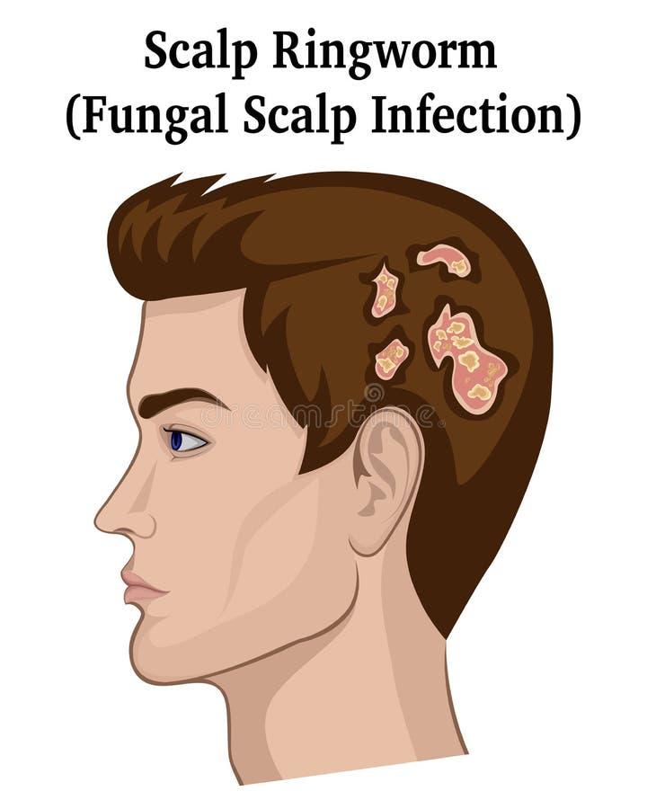 Illustratie van Scalp Ringworm royalty-vrije illustratie