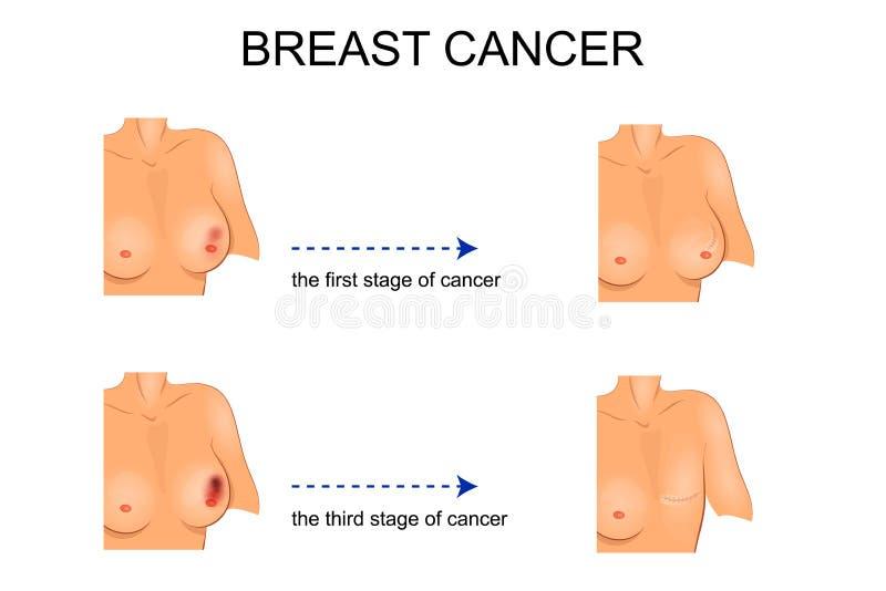 Illustratie voor medische publicaties carcinoom chirurgie vector illustratie