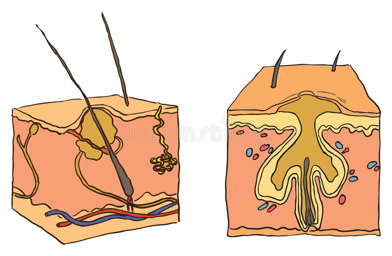 Download Illustration For Acne Royalty Free Stock Images - Image: 22043719