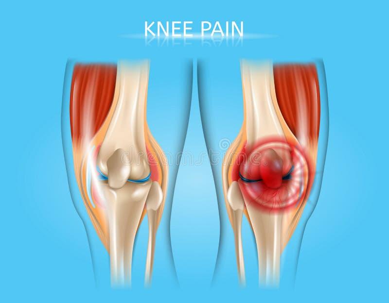 Illustration anatomique de vecteur réaliste de douleur de genou illustration libre de droits