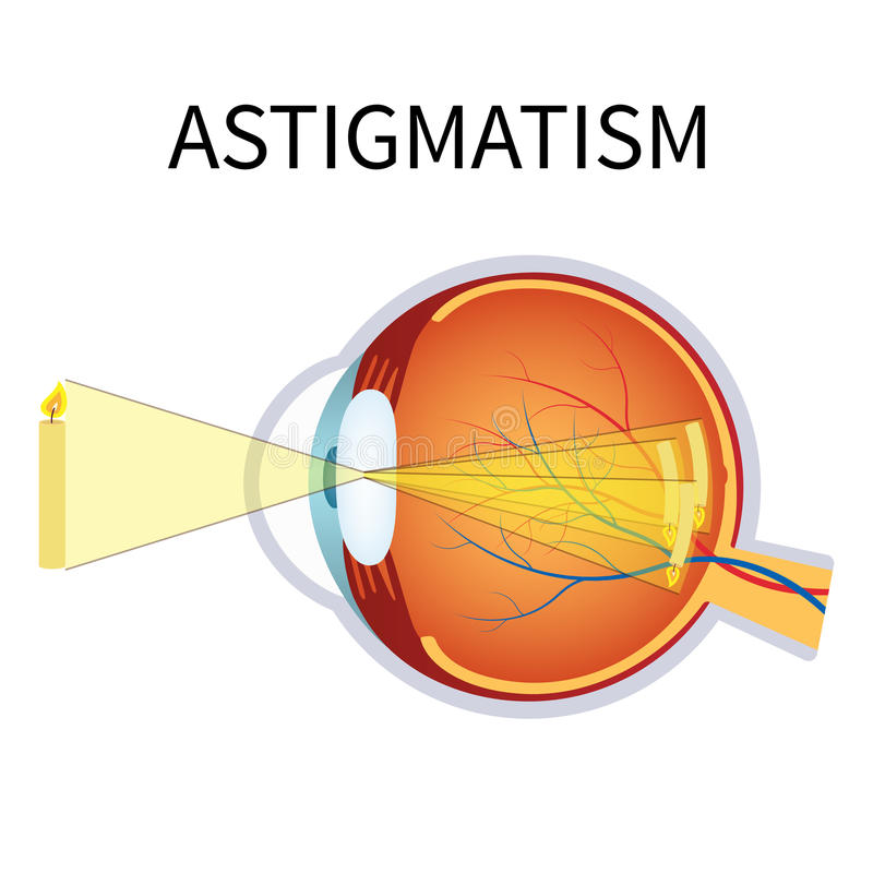 Illustration of astigmatism. Astigmatism is a blurred vision. Anatomy of the eye, cross section royalty free illustration