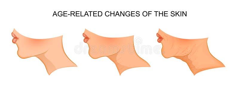 Illustration av ålder-släkta hudändringar agility vektor illustrationer
