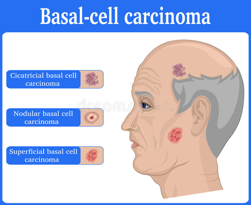 Illustration av carcinoma för grundläggande cell stock illustrationer
