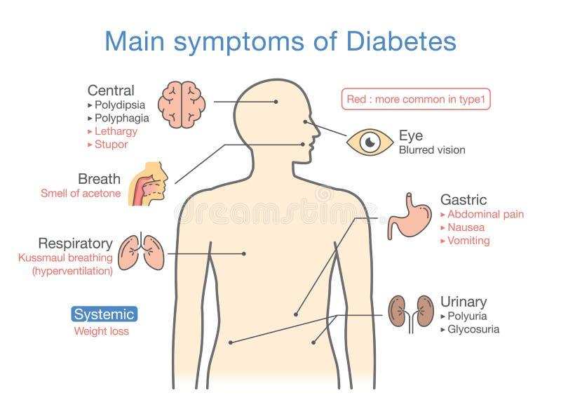 Illustration av huvudsakliga tecken av sockersjuka stock illustrationer