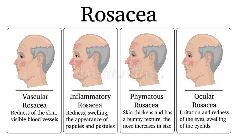 Illustration av Rosacea stock illustrationer