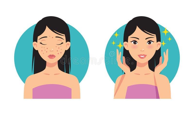 Illustration avant et après le traitement facial d'acné d'une belle fille illustration libre de droits