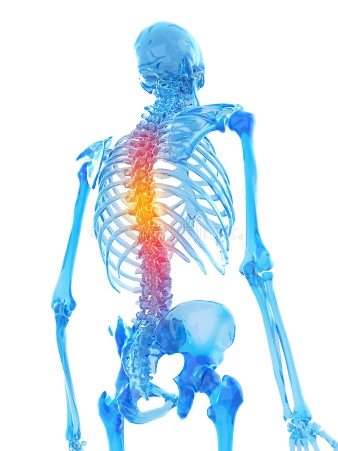 Illustration of backache. 3d rendered medically accurate illustration of backache stock illustration