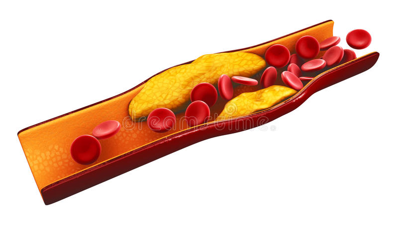 Illustration of blood cells with plaque buildup of cholesterol isolated white royalty free stock images