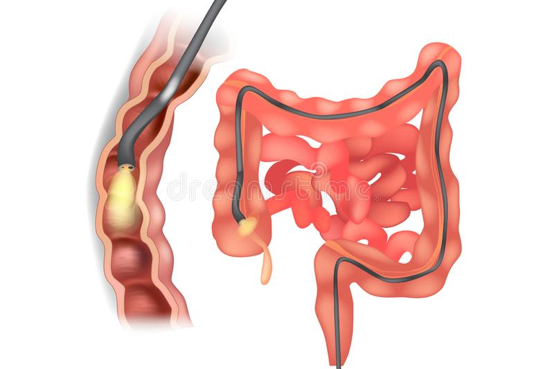Illustration of colonoscope. In the colon during a colonoscopy procedure. GI Endoscopy stock illustration