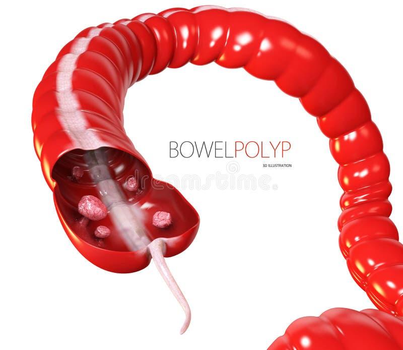 illustration 3d des polypes de deux points Polype dans l'intestin Blanc d'isolement illustration stock