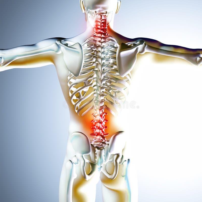illustration 3d médicale montrant des douleurs de dos illustration de vecteur