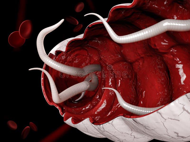 illustration 3d d'un ankylostome dans le gros intestin illustration stock