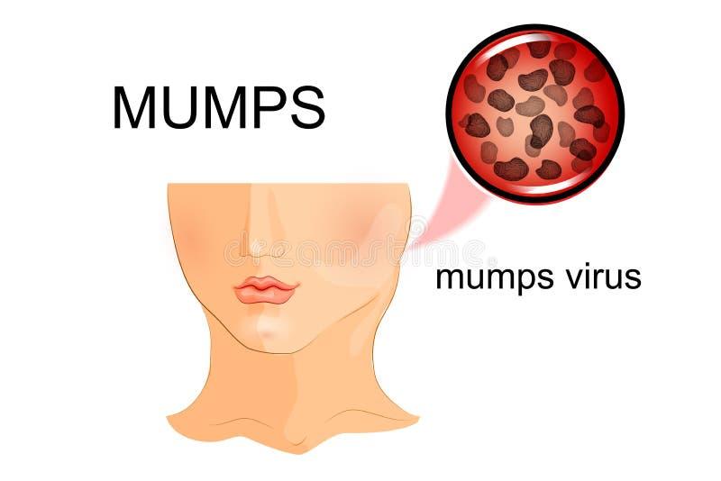 Illustration d'un enfant affecté par des oreillons virus illustration libre de droits