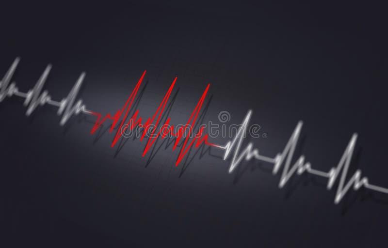 Illustration de battement de coeur d'Arrythmia illustration de vecteur