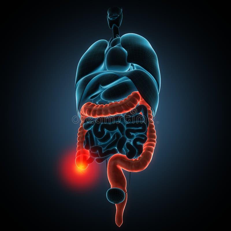 Illustration de la maladie d'intestins illustration libre de droits