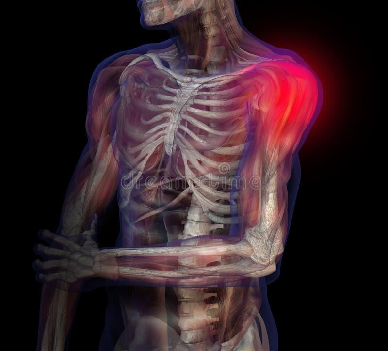 Illustration de rayon X de douleur d'épaule. illustration de vecteur