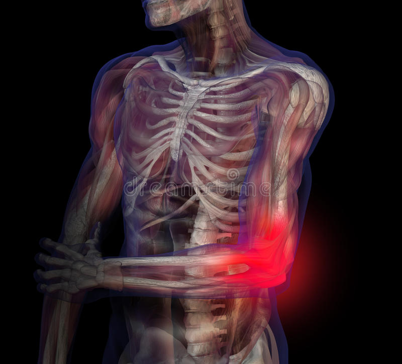 Illustration de rayon X de douleur de coude. illustration libre de droits