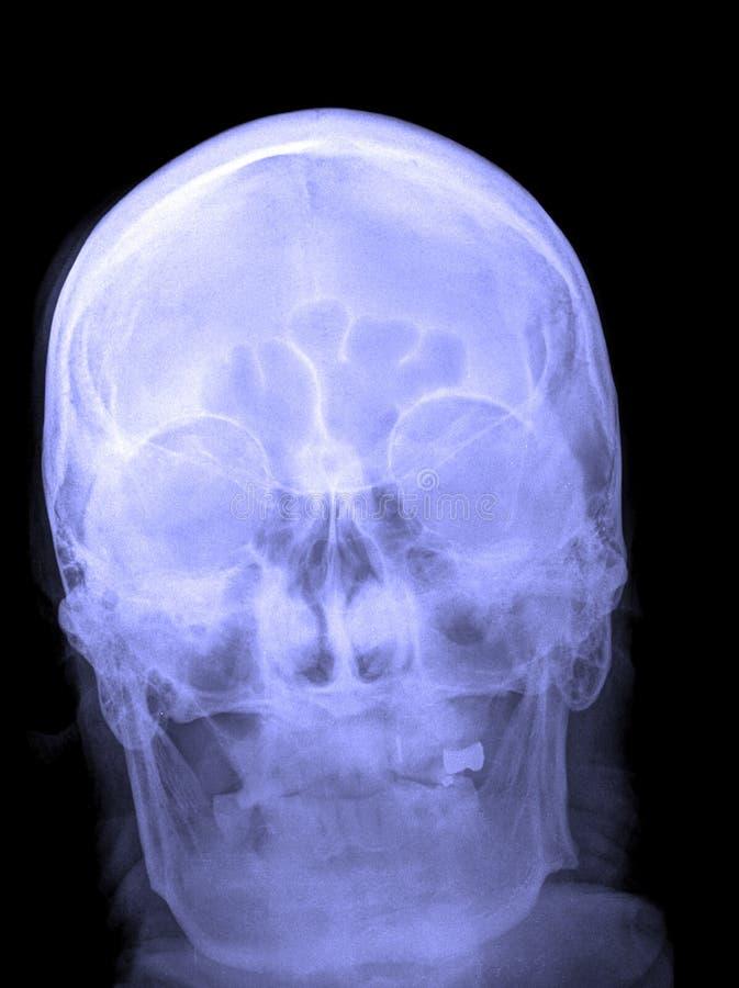 Illustration de rayon X du crâne photo libre de droits
